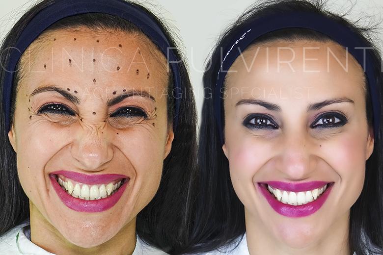 Punturine Botox a Catania Offerte Botulino Medici Catania