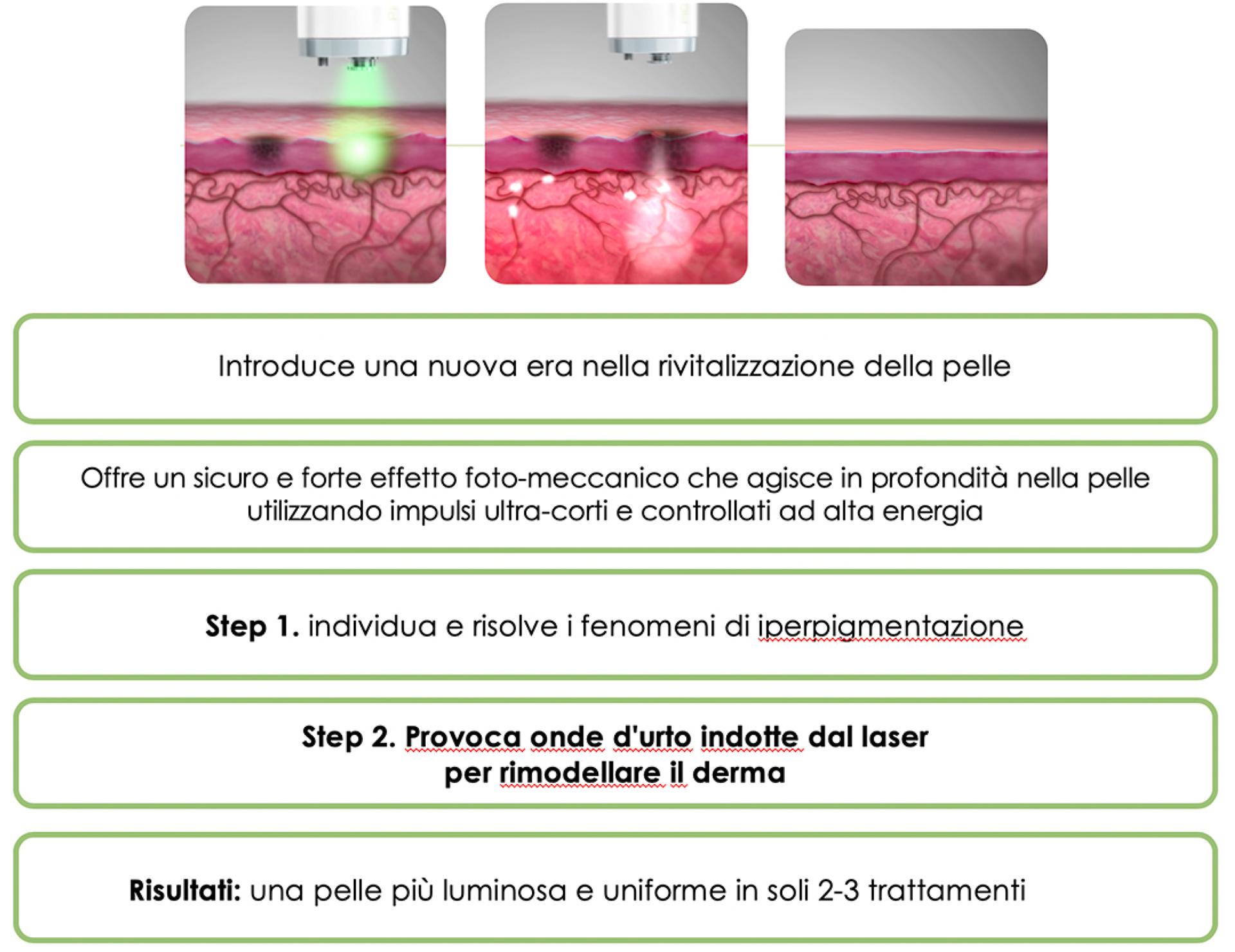 Laser PICO GENESIS FX efficacia