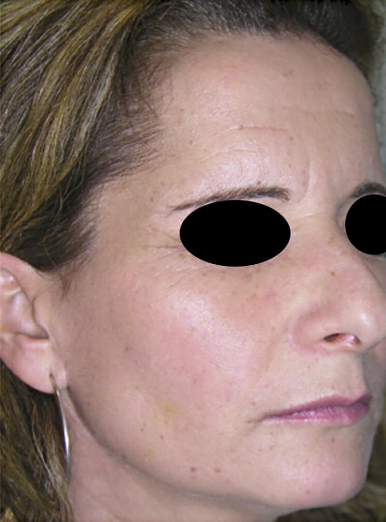 Microbotox, immagine ritratta dopo il trattamento