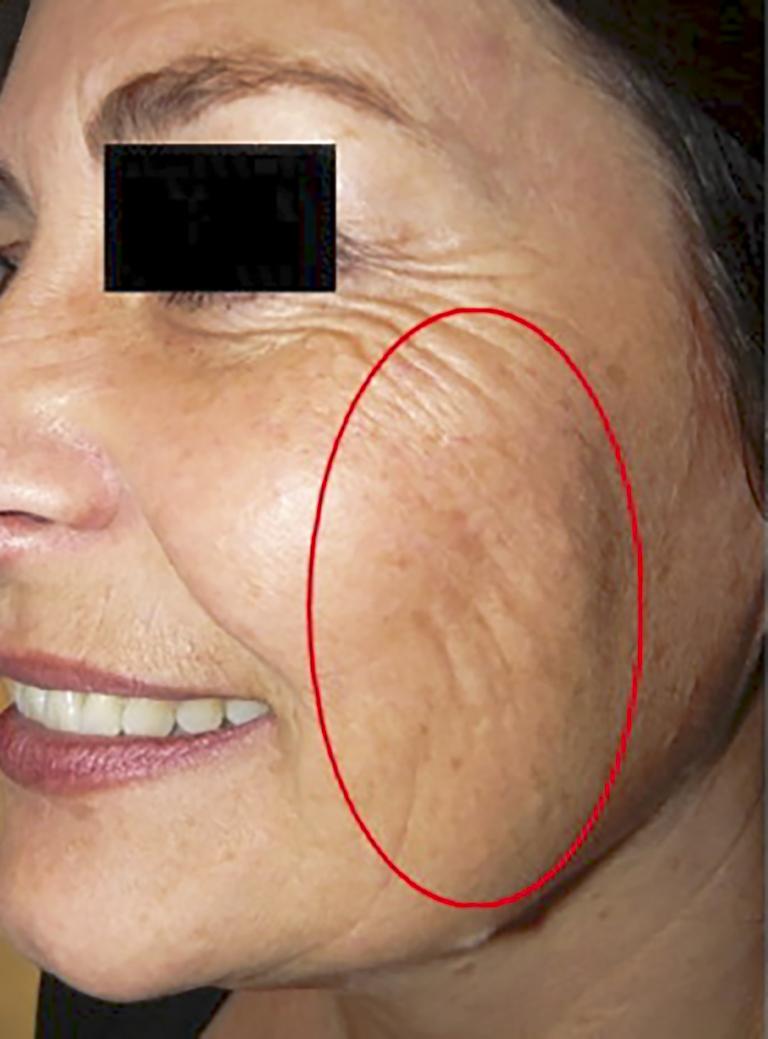 Microbotox, immagine ritratta prima del trattamento