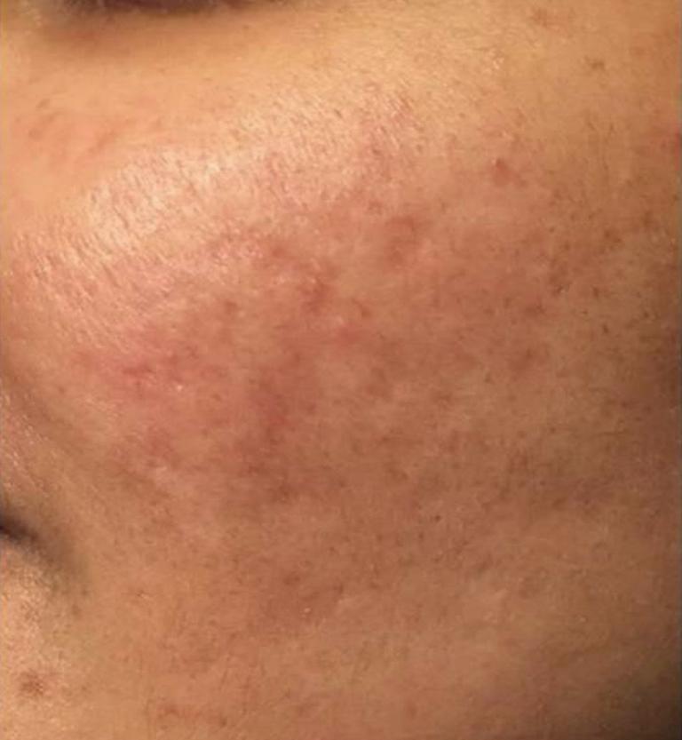 Laser co2 trattamento cicatrici acne dopo