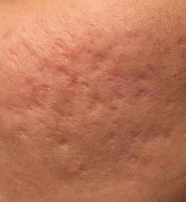 Laser co2 trattamento cicatrici acne prima