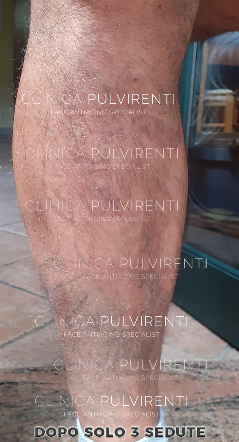 Esempio di rimozione tatuaggio con laser a picosecondi Catania