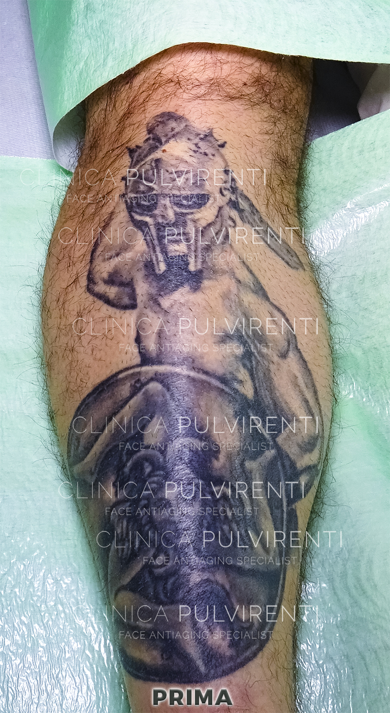 01_rimozione_tatuaggi_prima