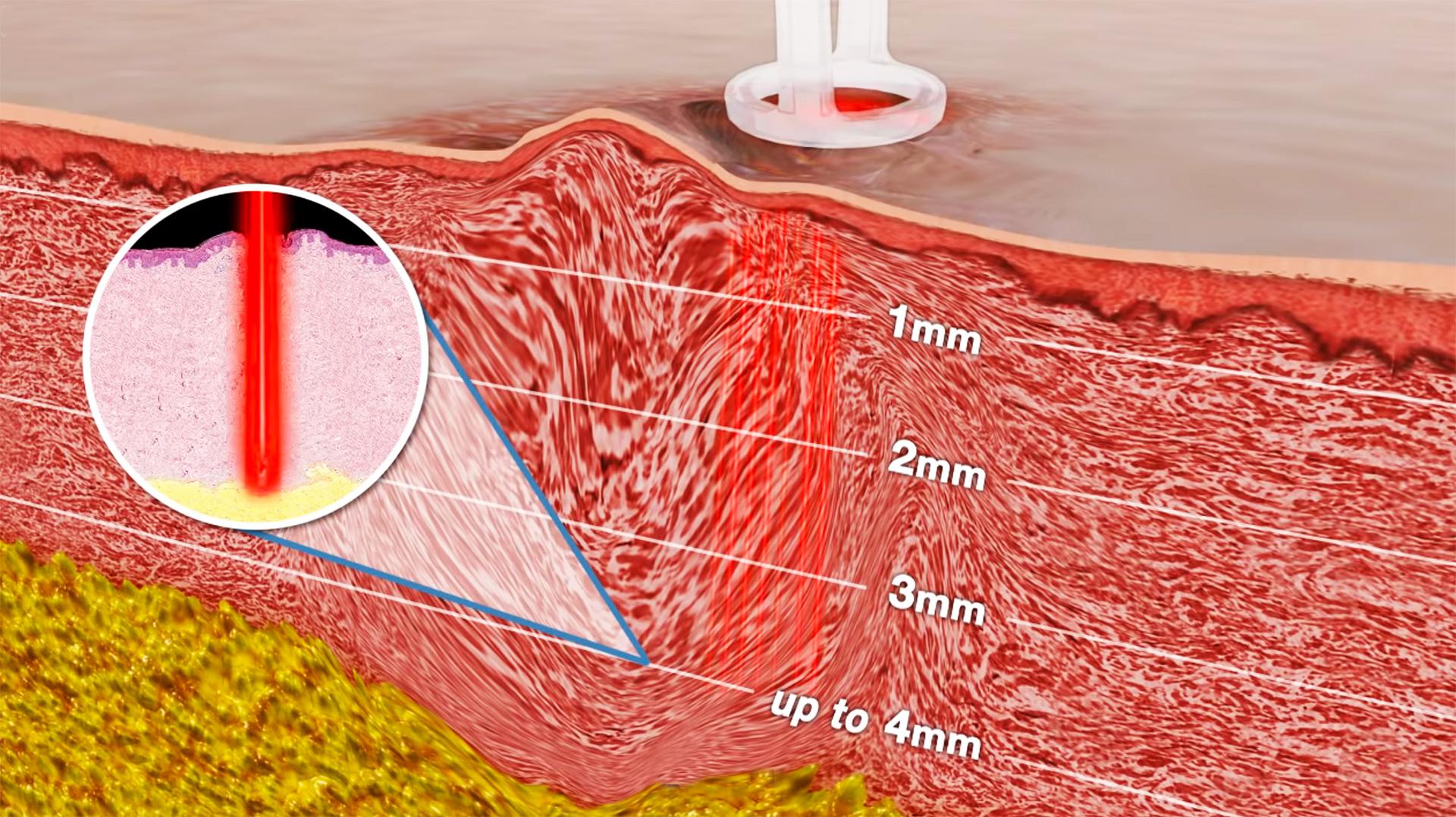 Trattamento Laser per acne a Giarre, Catania, Sicilia