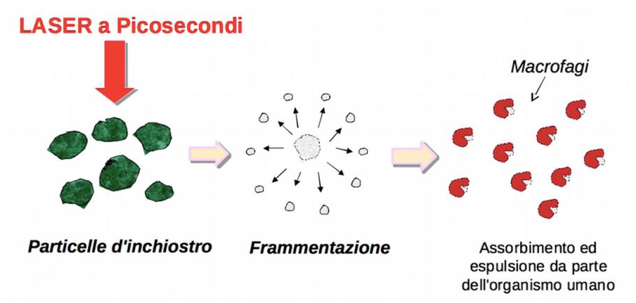 Azione dei macrofagi nel Laser a picosecondi