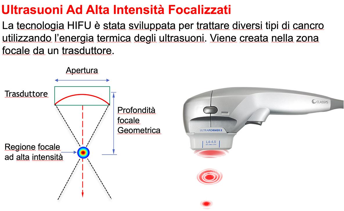 MFHIFU(Multi-Functional High Intensity Focused Ultrasound) Sistema non chirurgico di lifting e rassodamento di viso e corpo