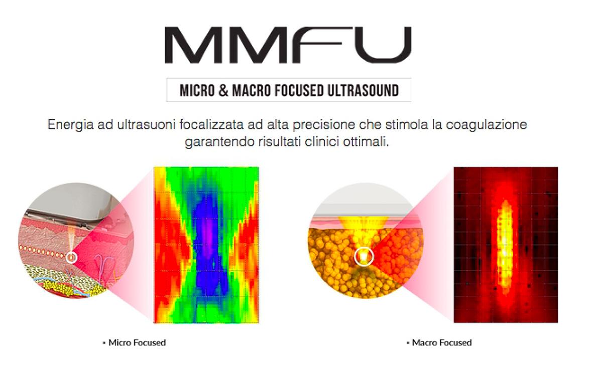 mmfu_ultrasuoni_microfocalizzati_a_catania