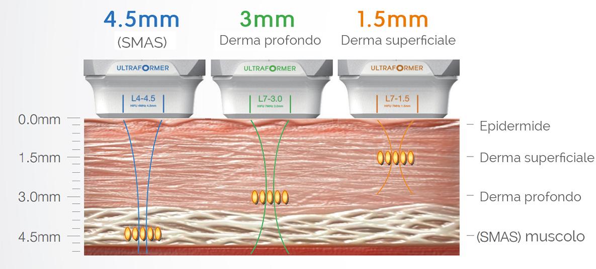 trattamento_ultraformer_a_catania