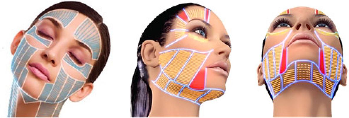 Zone trattamento viso Ultraformer