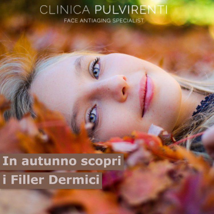 Filler_catania