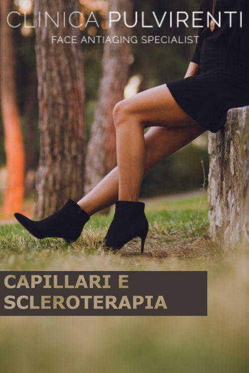 Scleroterapia catania