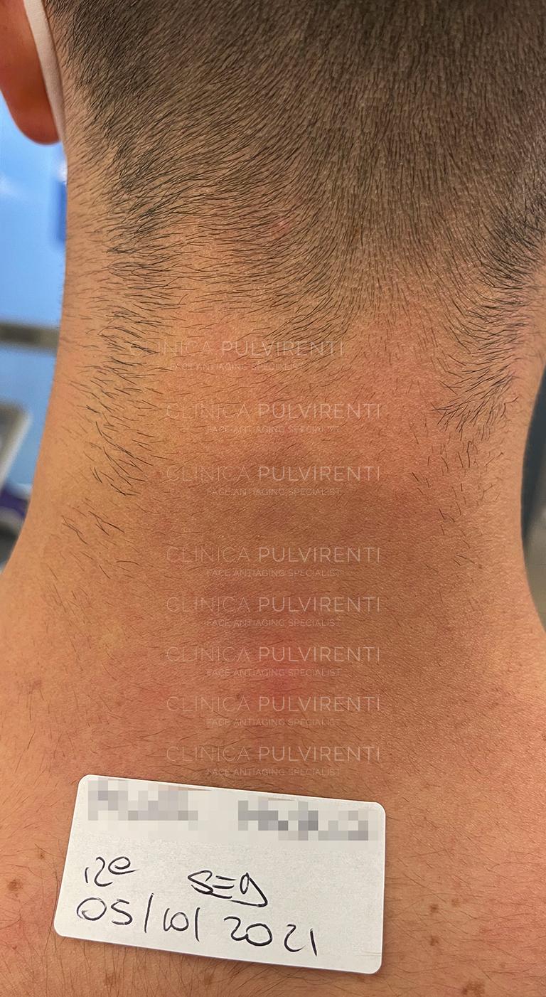 Rimozione tatuaggi a Palermo