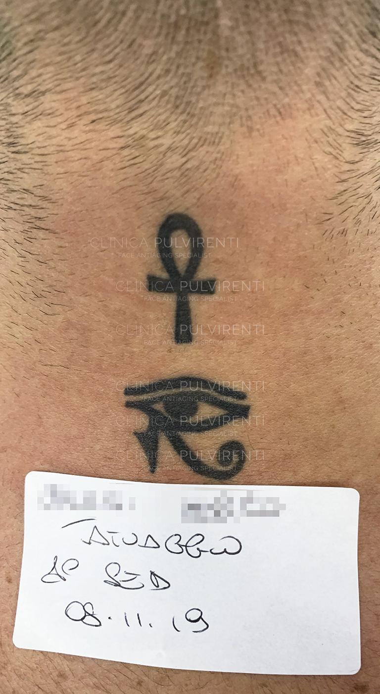 Eliminare tatuaggio con Laser a Palemo